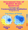 Graphic display of brain functioning before and during the practice of TM